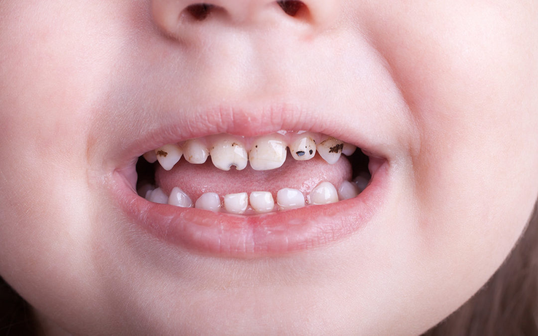 Tips For Baby Bottle Tooth Decay Treatment