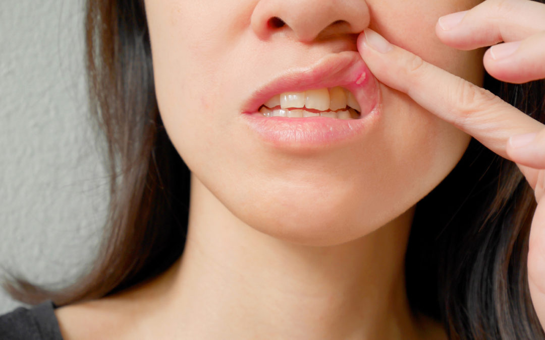 Sore Gums During Early Pregnancy