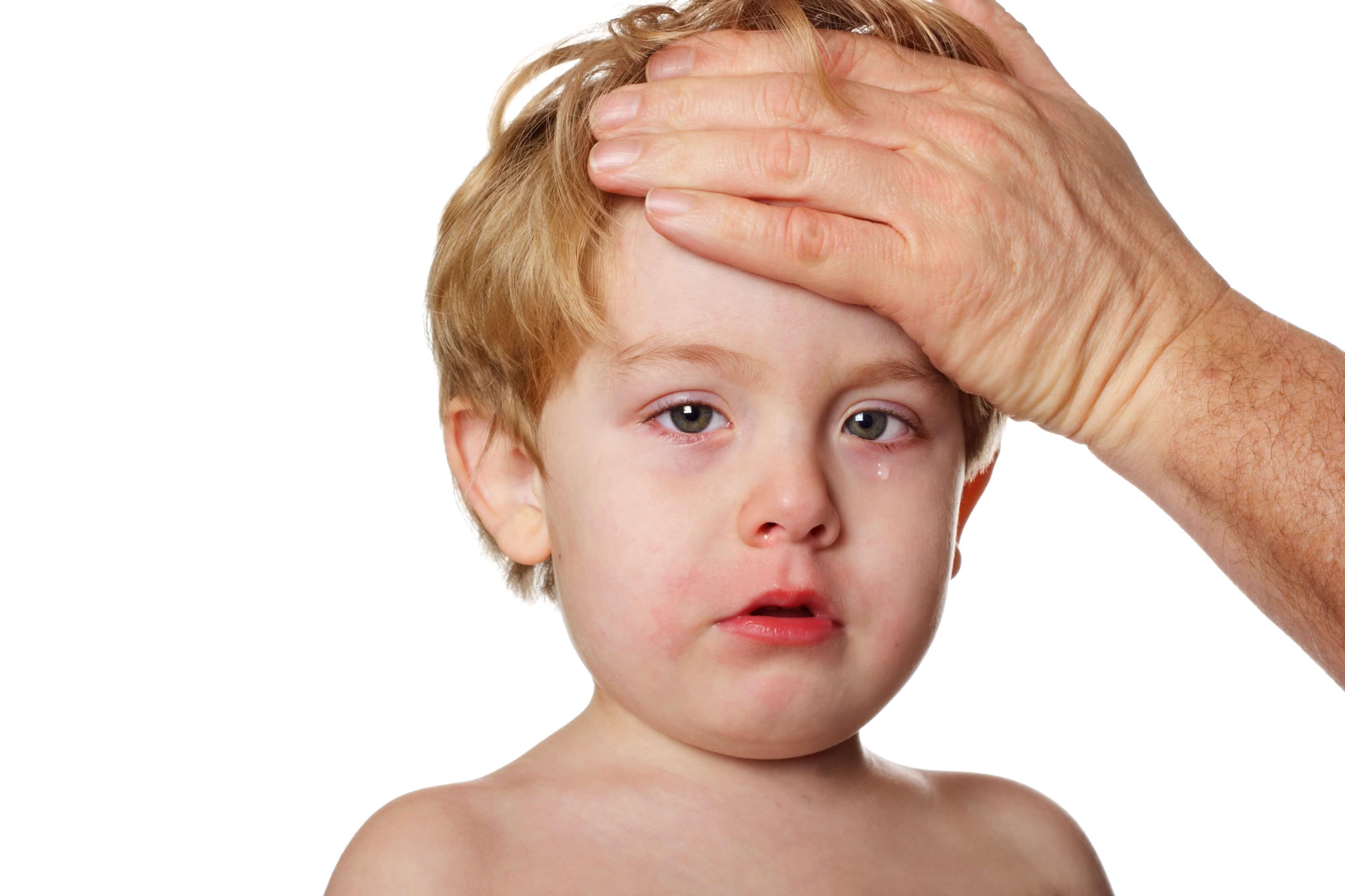 Identifying Viral Rash In Children