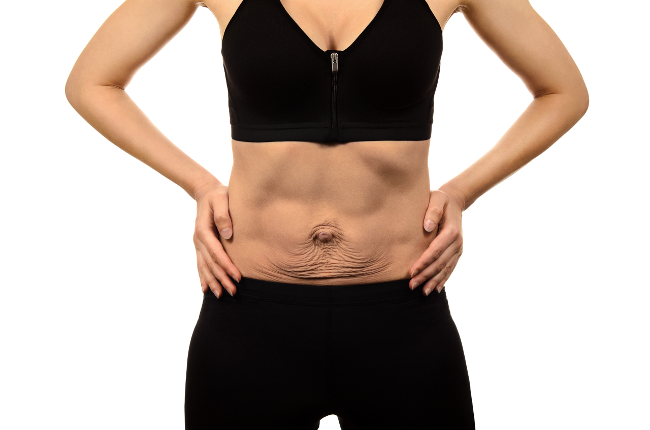 Diastasis Recti Symptoms