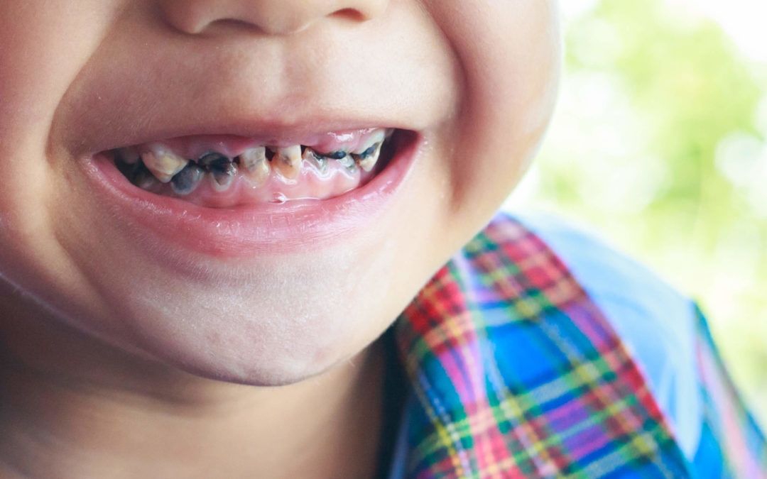 How To Avoid Kids Rotten Teeth