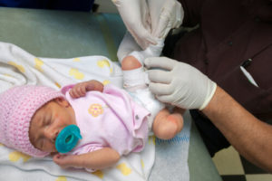 clubfoot treatment