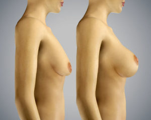 how to not have saggy breast