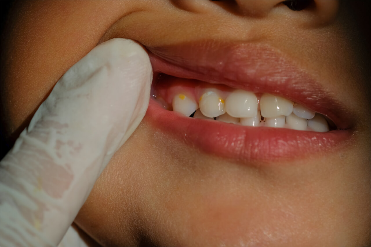 yellowing teeth in child