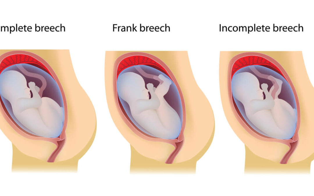 Breech Baby Birth Defects