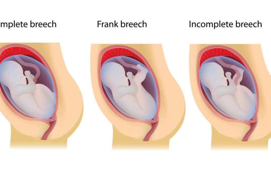 Breech Baby Birth Defects