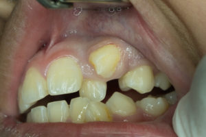 retained deciduous teeth