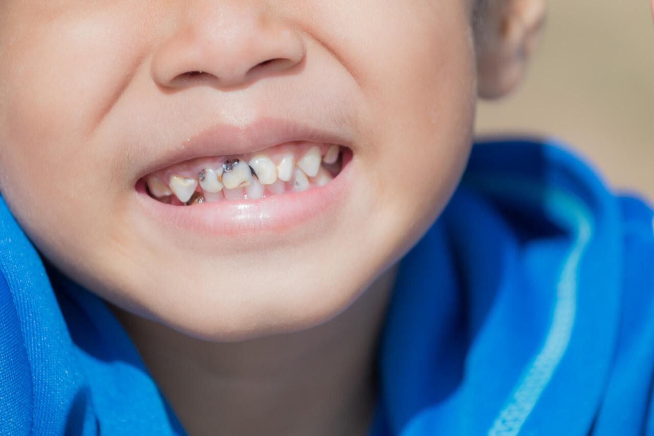 baby teeth cavities treatment