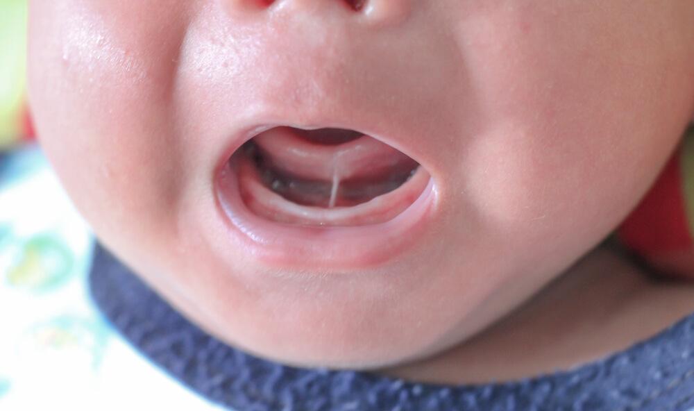 swollen baby gums