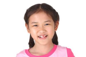 toddler broken tooth