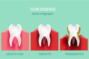 stages of tooth infection