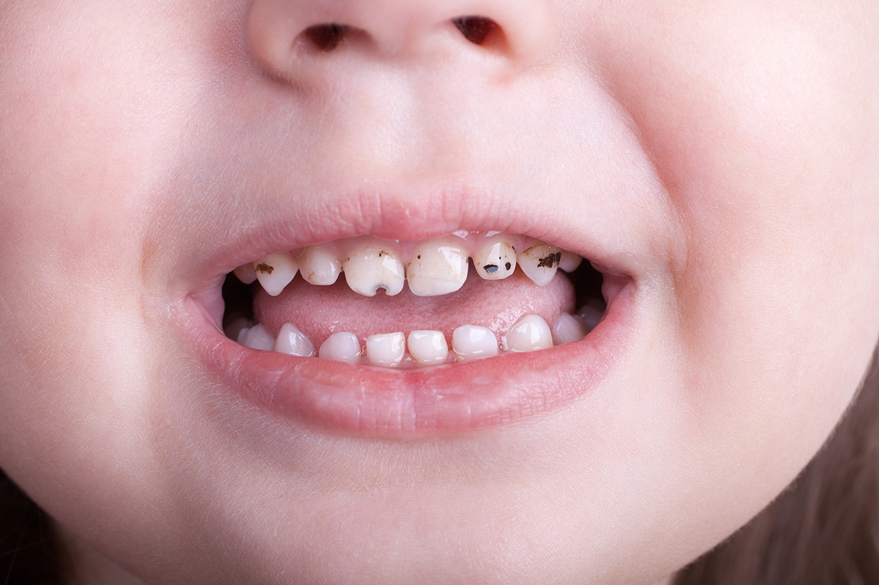 baby tooth decay