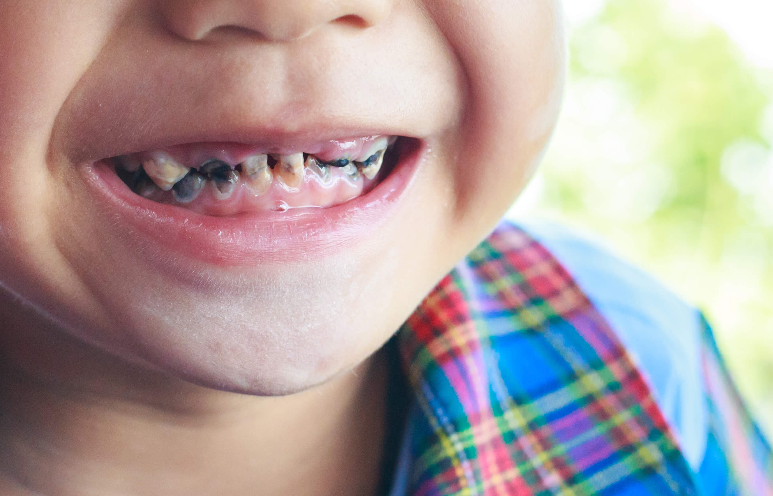 Kids Rotten Teeth