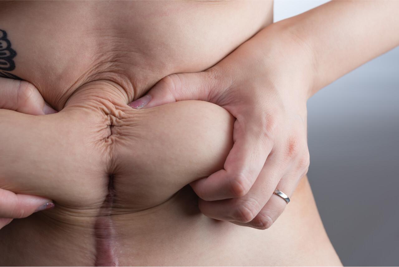 tightening loose skin after pregnancy