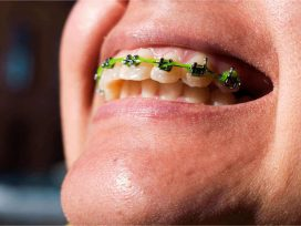 Women with buck teeth still have high hopes to treat this condition.